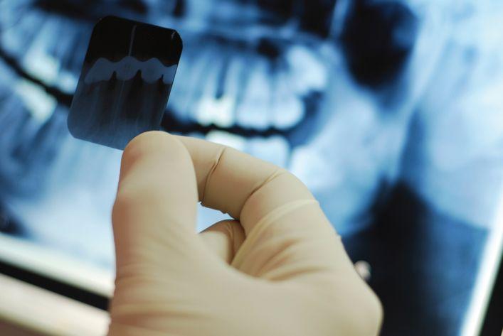 Рентген зубов при грудном вскармливании