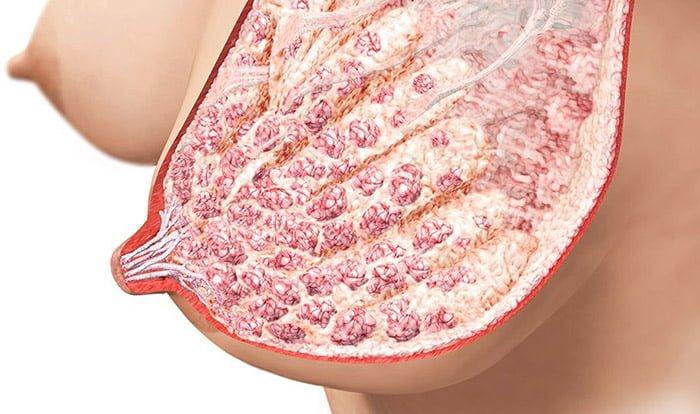 плазмоцитарный фиброз груди