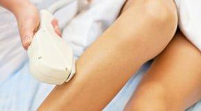 лазерная эпиляция при грудном вскармливании