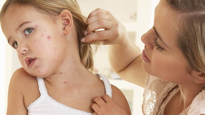 аллергия на лекарство у ребенка