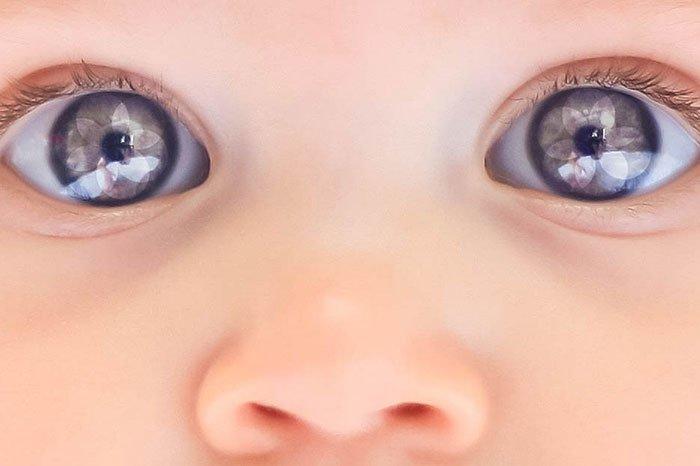 здоровье глаз малыша