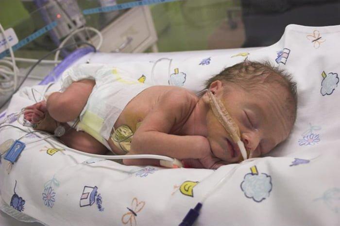 лактазная недостаточность у новорожденного