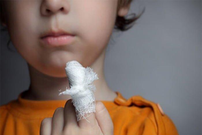 перевязка пальца ребенку