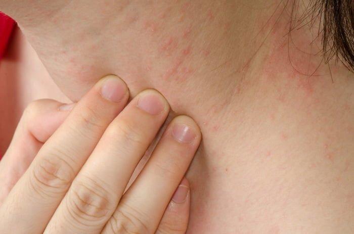 воспаление на коже