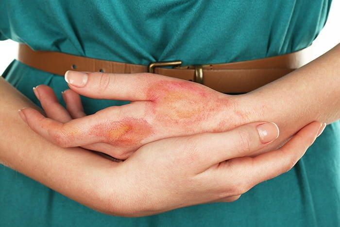повреждение кожи на руке