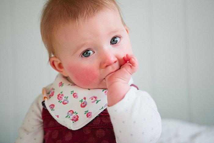 аллергия на щеках у грудного ребенка