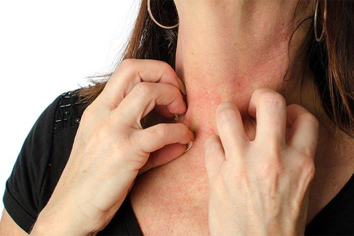 аллергия на травяной сбор