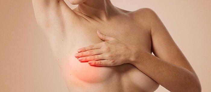 киста в грудных железах