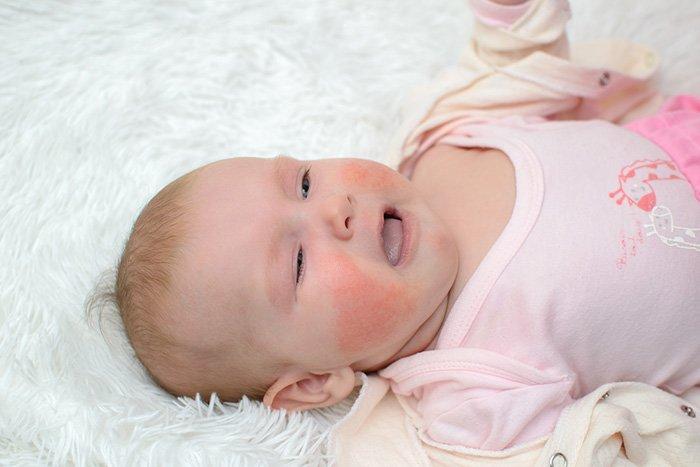 признак диатеза у ребенка