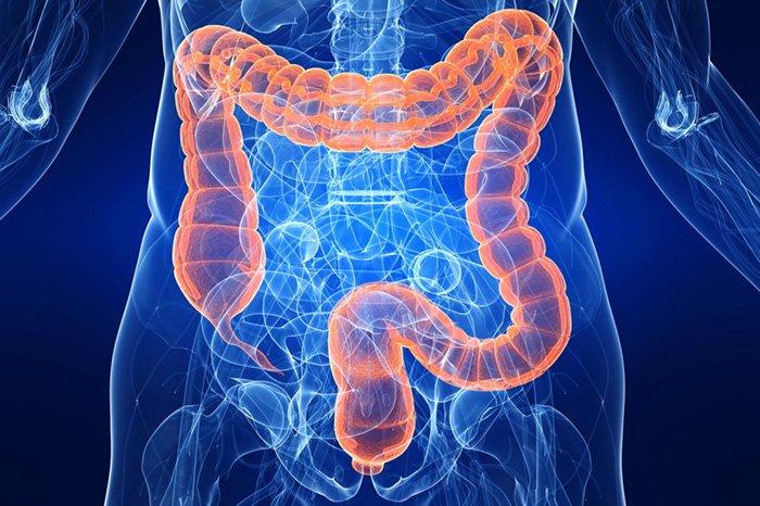 воспаление толстого кишечника