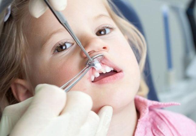 Шатается зуб у ребенка: что делать