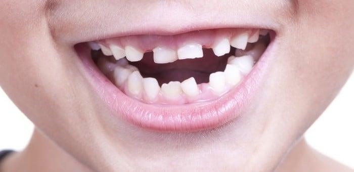 Смена молочных зубов на постоянные у ребенка