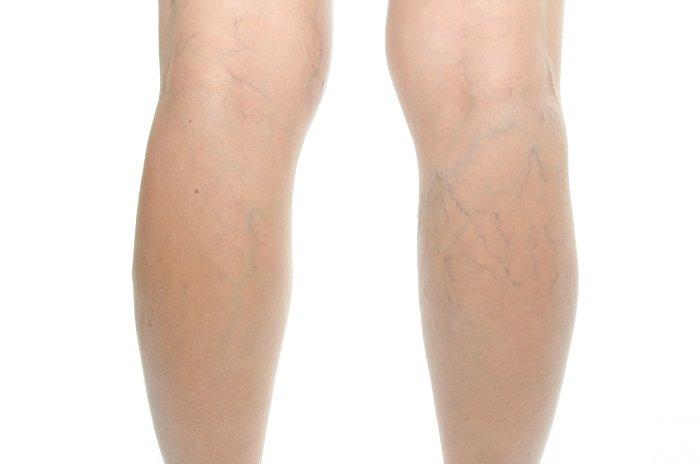 расширенные вены на ногах