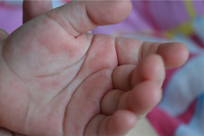 аллергия на руках у ребенка