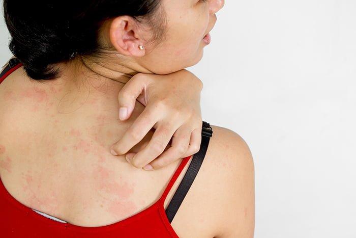 кожная сыпь при грудном вскармливании