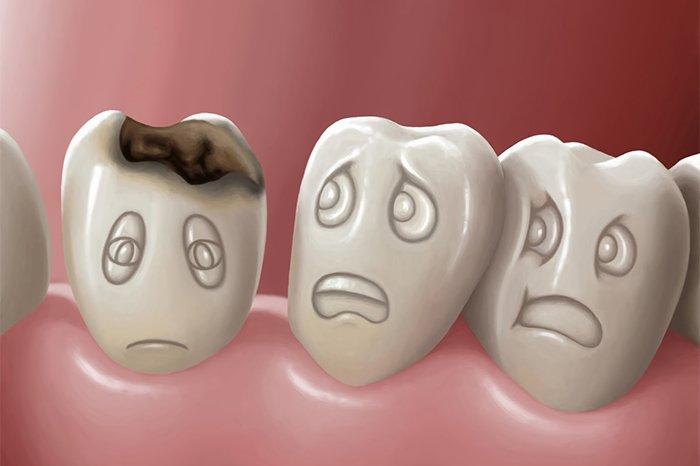 кариес на молочных зубах у детей