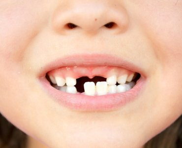 Что делать если шатается зуб у ребенка